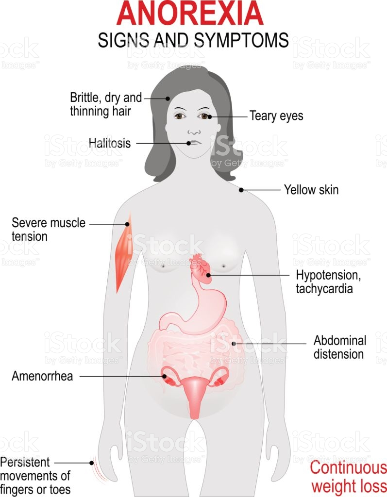causes symptoms and treatment of anorexia nevrosa Anorexia nervosa is a life-threatening eating disorder that is characterized by self-starvation and excessive weight loss learn causes, symptoms, and treatment options at webmd.